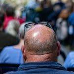 Lutter contre l'alopécie avec des solutions efficaces