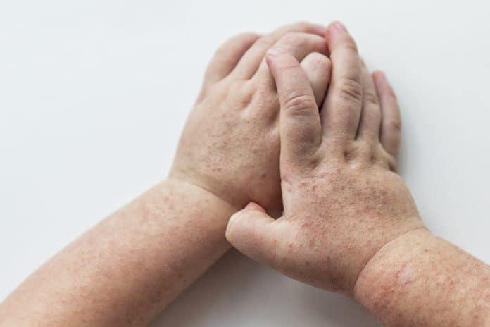 Scarlatine : comment la reconnaître et quel traitement ?