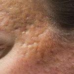 Quelles solutions pour des cicatrices en creux ?