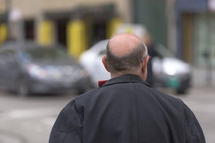 Combien coûte une greffe de cheveux ?