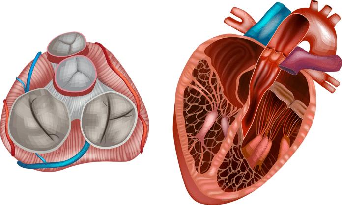 Qu'est-ce que le prolapsus de la valve mitrale (PVM) ?