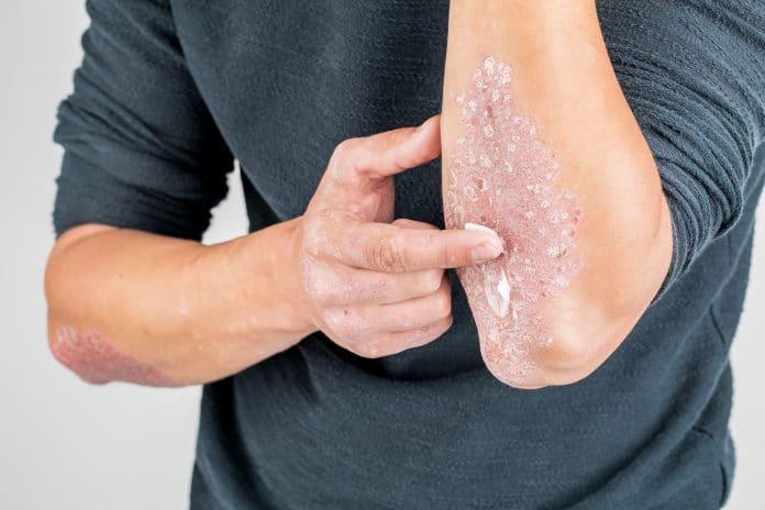 Quel traitement naturel prendre pour lutter contre le psoriasis ?
