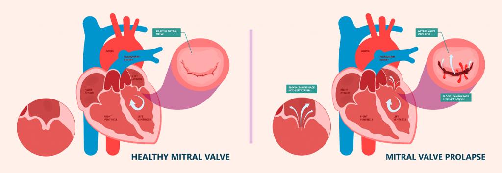 Comment détecter un prolapsus de la valve mitrale ?