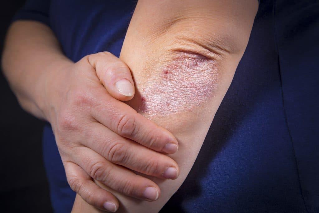 Le psoriasis est-il contagieux?