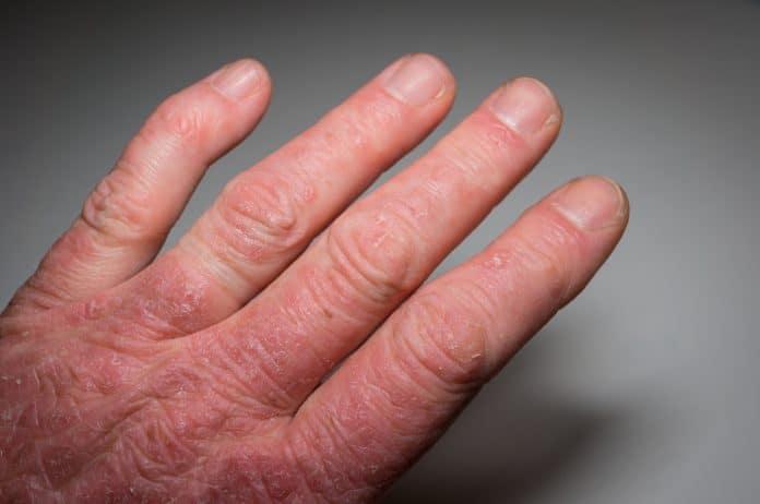 Le psoriasis articulaire ou rhumatisme psoriasique : qu'est-ce que c'est ?