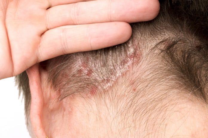 Comment soulager le psoriasis du cuir chevelu ?
