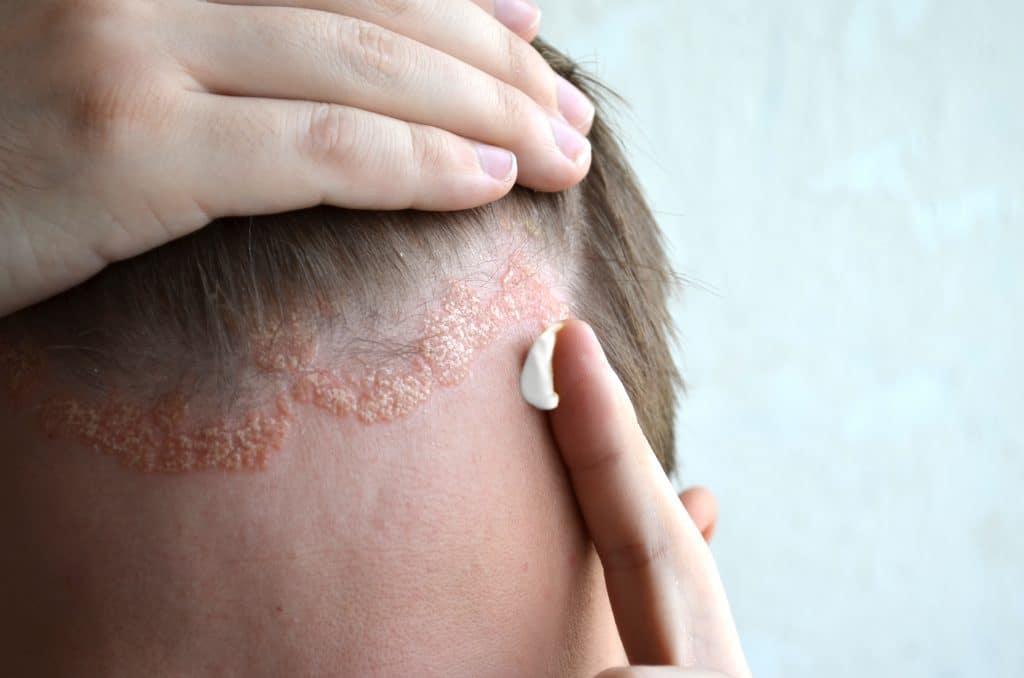 Comment traiter le psoriasis du cuir chevelu ?