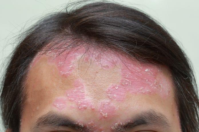 Comment se caractérise le psoriasis du visage ?