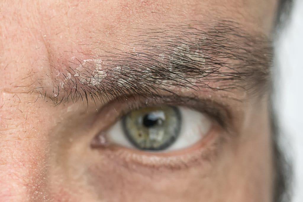 Comment traiter le psoriasis du visage ?