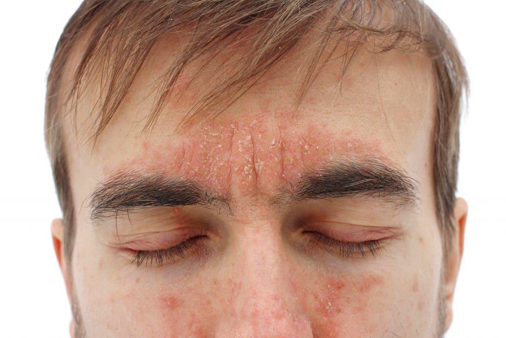 Comment reconnaître le psoriasis du visage ?