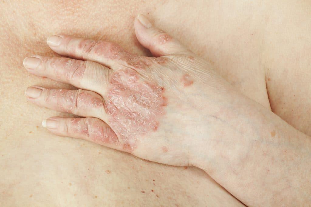 Le psoriasis des mains: comment le reconnaître?