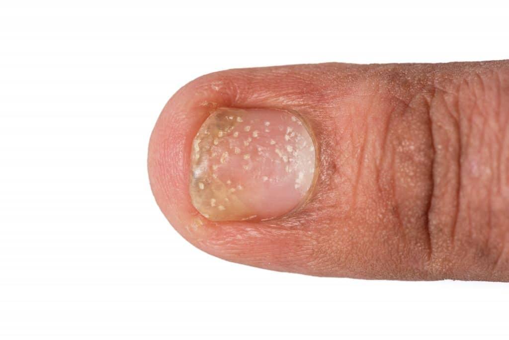 Qu'est-ce que le psoriasis de l'ongle ?