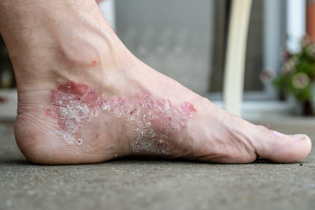 Comment soigner le psoriasis des pieds?