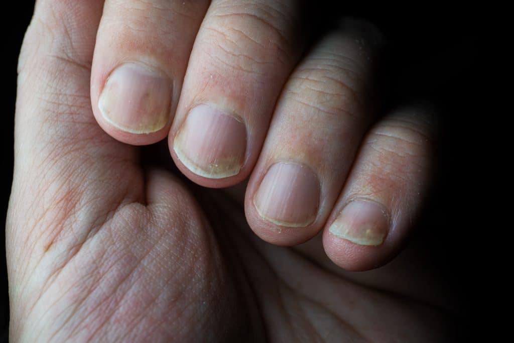 Comment soigner le psoriasis des ongles ?