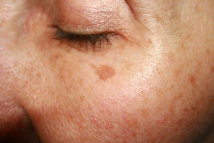 Comment traiter les taches pigmentaires ?