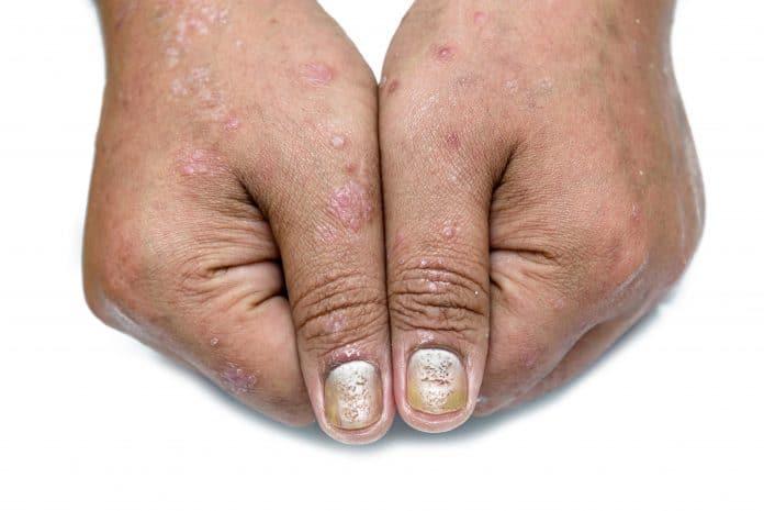 Comment traiter le psoriasis des ongles ?