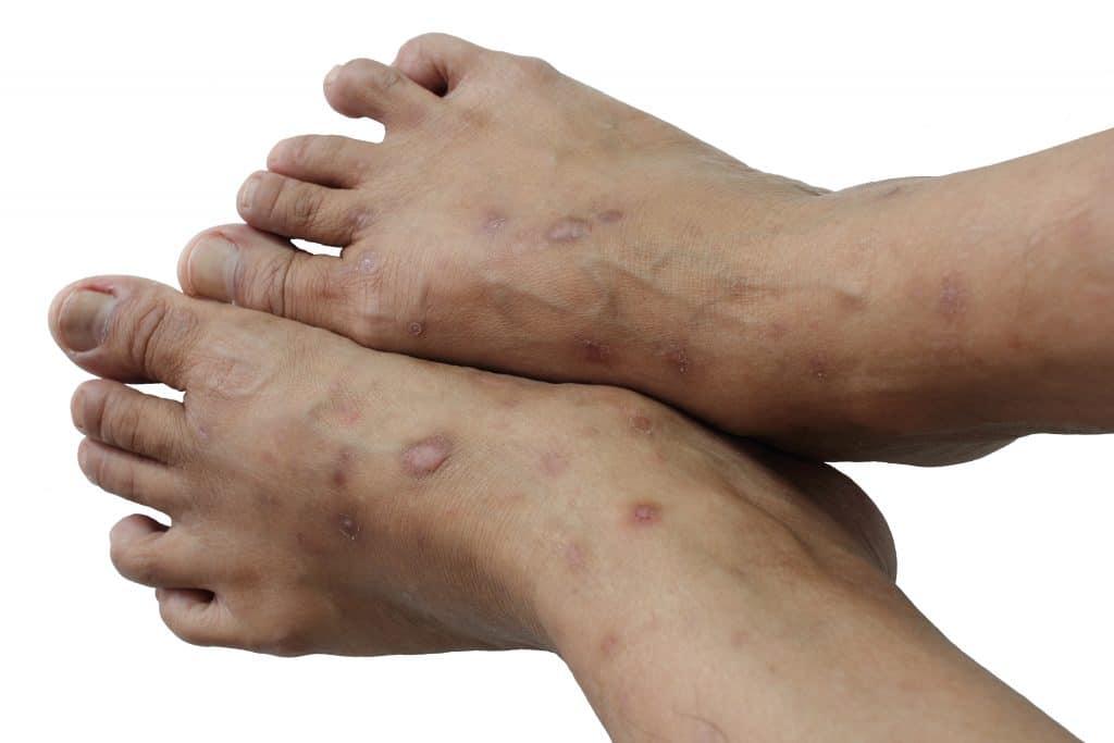 Comment reconnaître le psoriasis du pied?