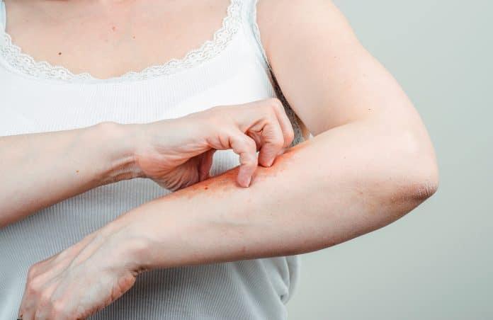 Le psoriasis inversé : c'est quoi ?