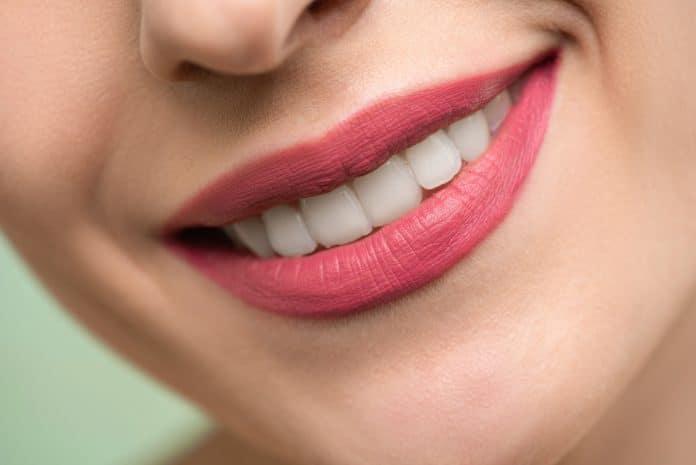 prix blanchissement dentaire