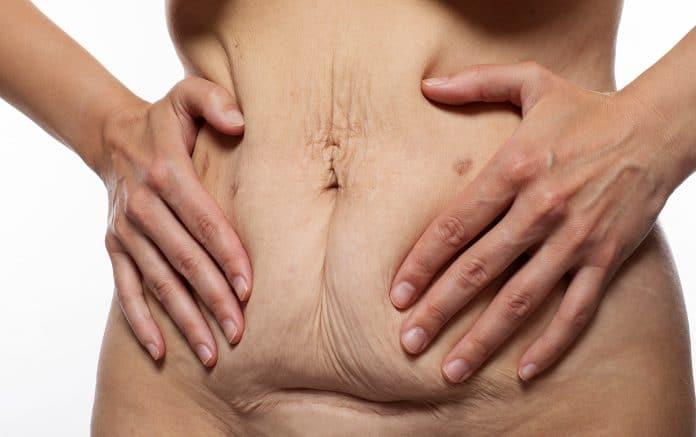 Qu'est-ce qu'un tablier abdominal ?