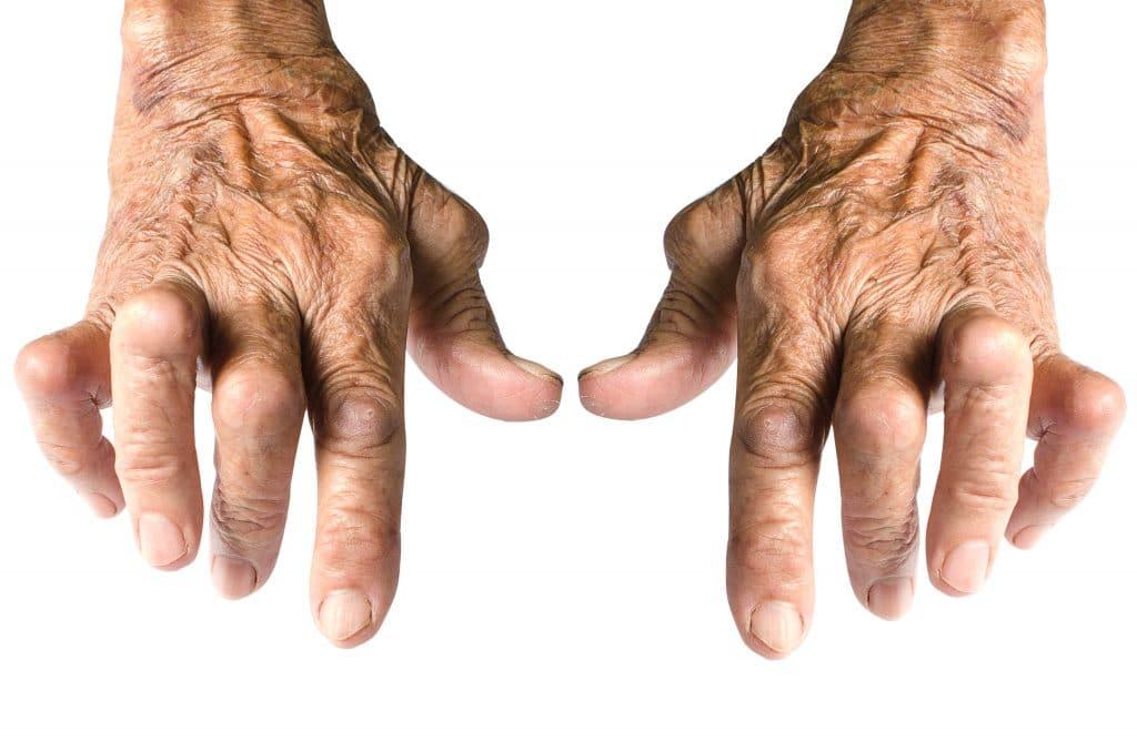 L'arthrite: c'est quoi?
